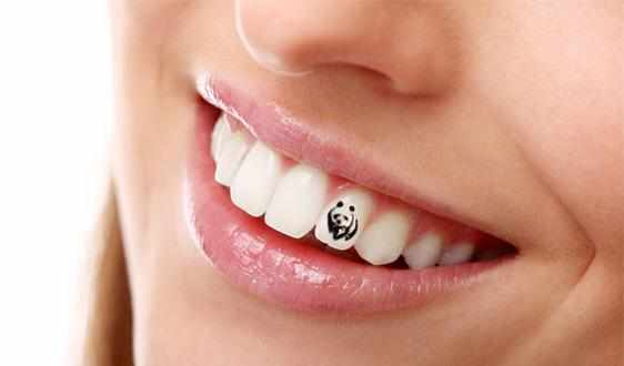 tatuirovka-na-zubah
